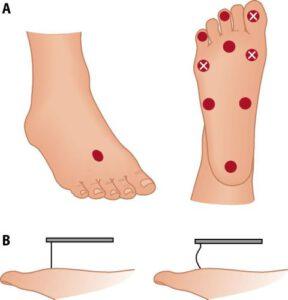 jalkojen tuntopuutokset